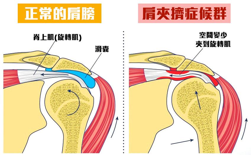 肩夾擠症候群-01.jpg