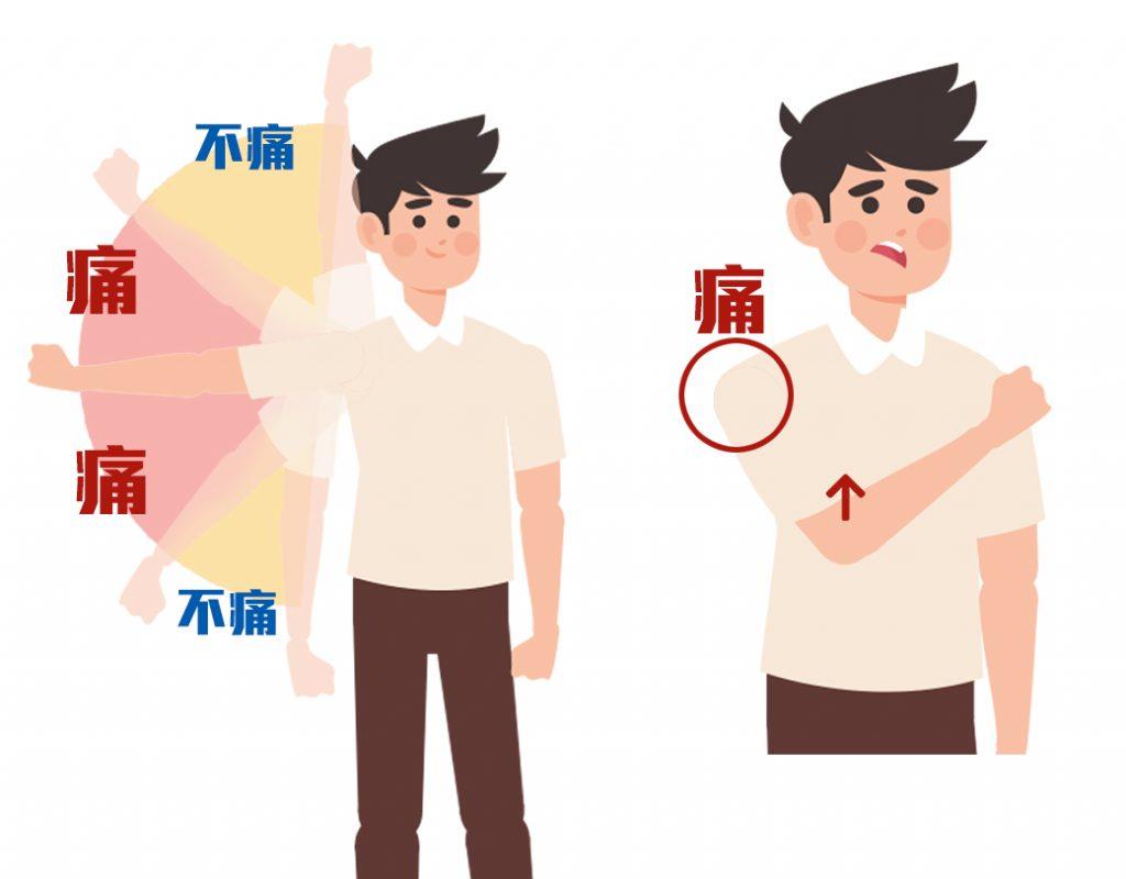肩夾擠症候群-02.jpg